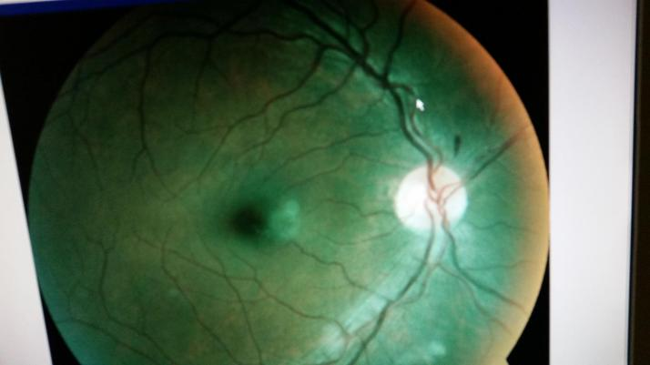 What the dilation revealed:  note the small black, carrot shaped heme above the optic nerve (the white round structure).