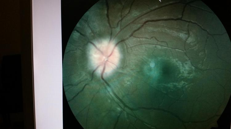Swelling of the patient's optic nerve