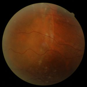 Note the whitish sheen over the left half of the retinal photo.  This is the part of the retina that has detached.