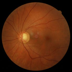 This nerve is suspicious for glaucoma.   Risk factors are taken into account before treatment is prescribed.