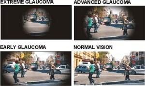 glaucomavisionloss