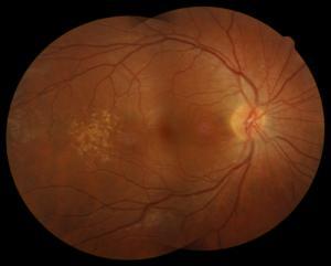 maculardystrophy1