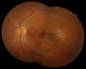 maculardystrophy2