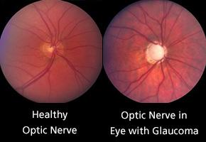 optic-nerve-comparison_290